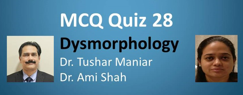 Click here for MCQ 28 Dysmorphology